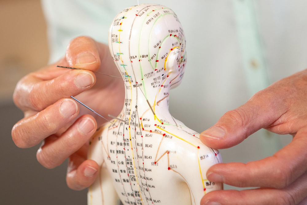 Akupunktur Rheinbach